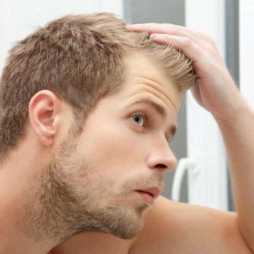 Лечение волос у мужчин
